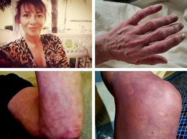 femeie UK infectat